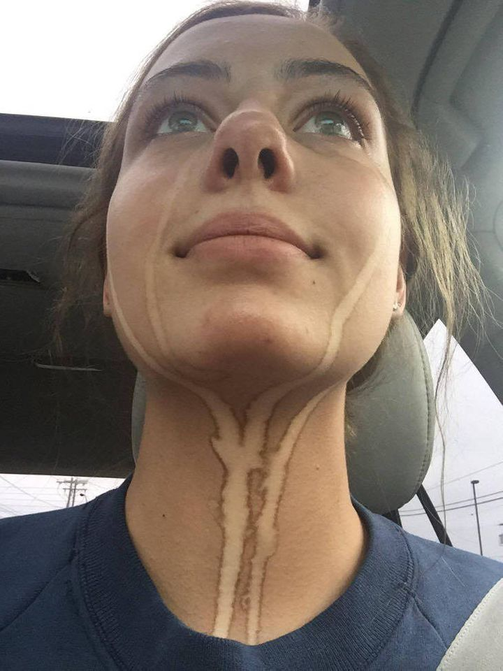 Tanning cream tears refuse to wash off
